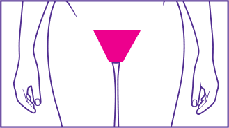 Standard bikini wax shape, hairs removed outside pant lines.