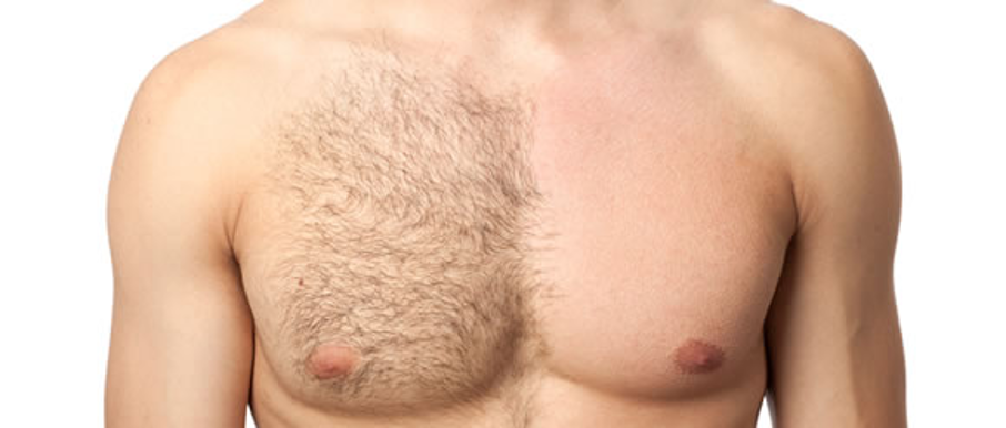 male chest half unwaxed half waxed